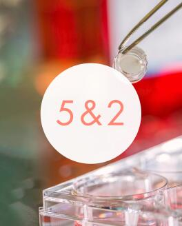AV_test-in-vitro-chiffre-cle